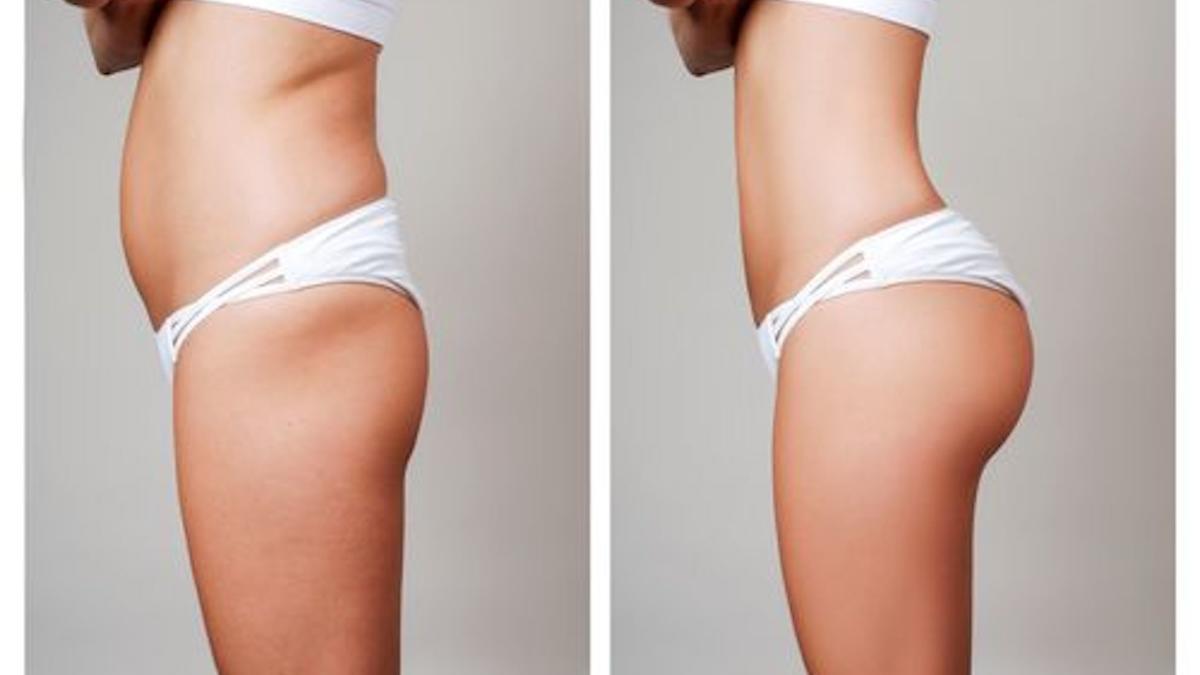 Antes y después de una liposucción.