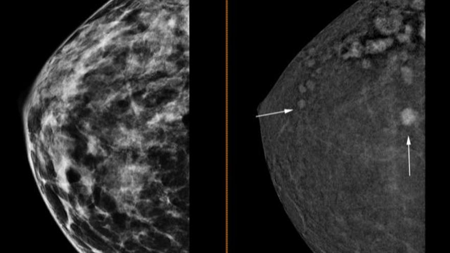 Mamografía en 3D en el Hospital del Vinalopó para detectar tumores de apenas 4 milímetros