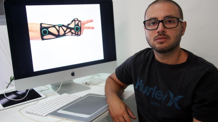 Creen una fèrula impresa en 3D per curar ossos trencats