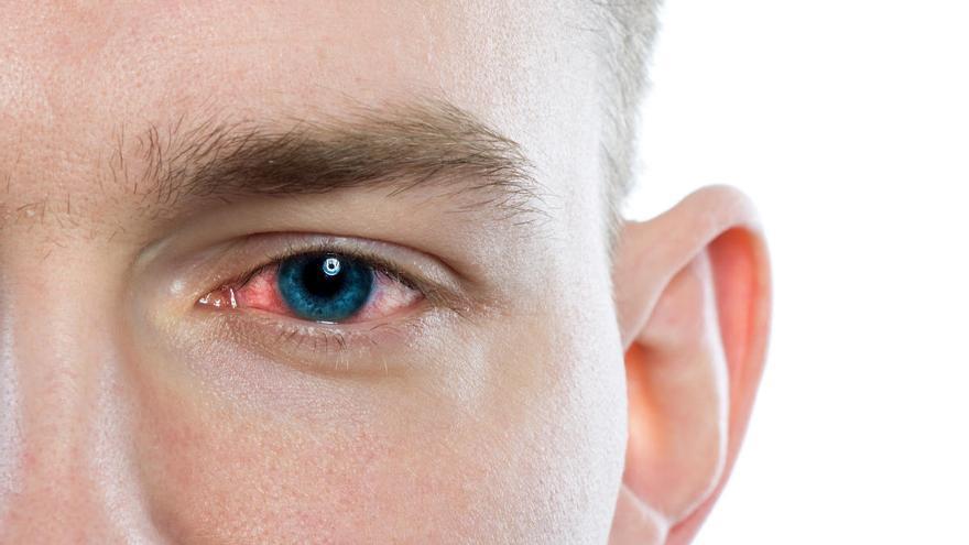 La conjuntivitis, síntoma principal de Covid-19