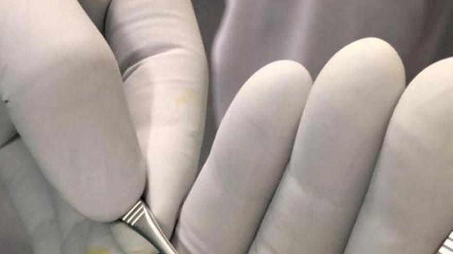 L'hospital d'Olot rep la donació de 40 còrnies des del 2019 i ja n'assumeix l'extracció