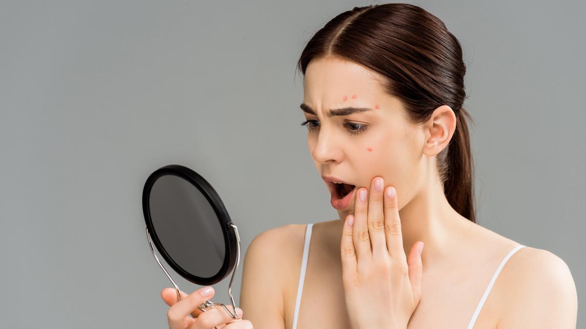 El acné, uno de los problemas que más preocupan