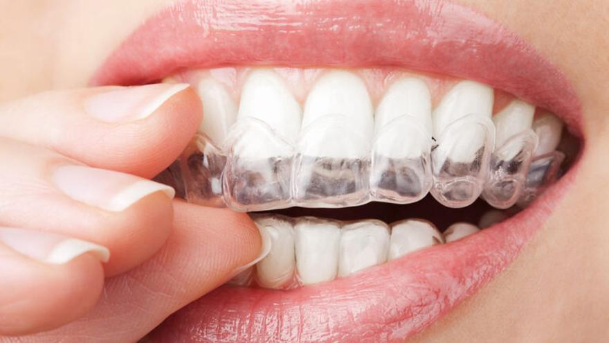 Los síntomas del bruxismo y los peligros del 'rechinar de dientes'