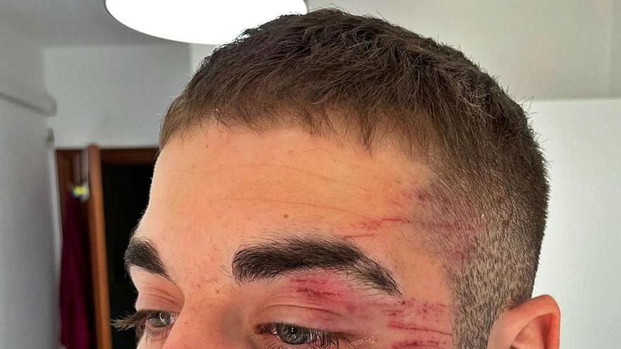 Denuncian una brutal agresión a un jugador en el Roldán-Hoya del Campo