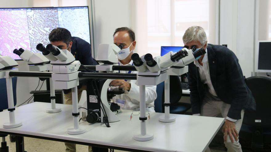 Un nou projecte permetrà digitalitzar les mostres d'anatomia patològica i millorar els diagnòstics als centres de l'ICS