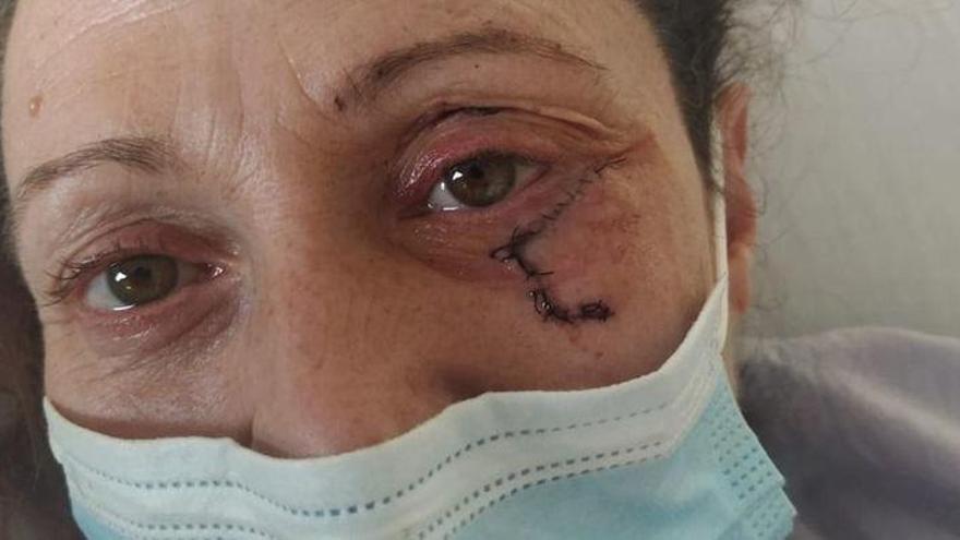 Brutal paliza a una mujer de Alicante por defender a su hijo de una familia de okupas
