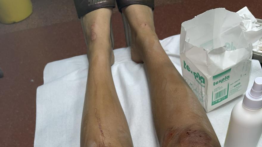 Una menor resulta herida por un robo con el método del tirón en Gáldar