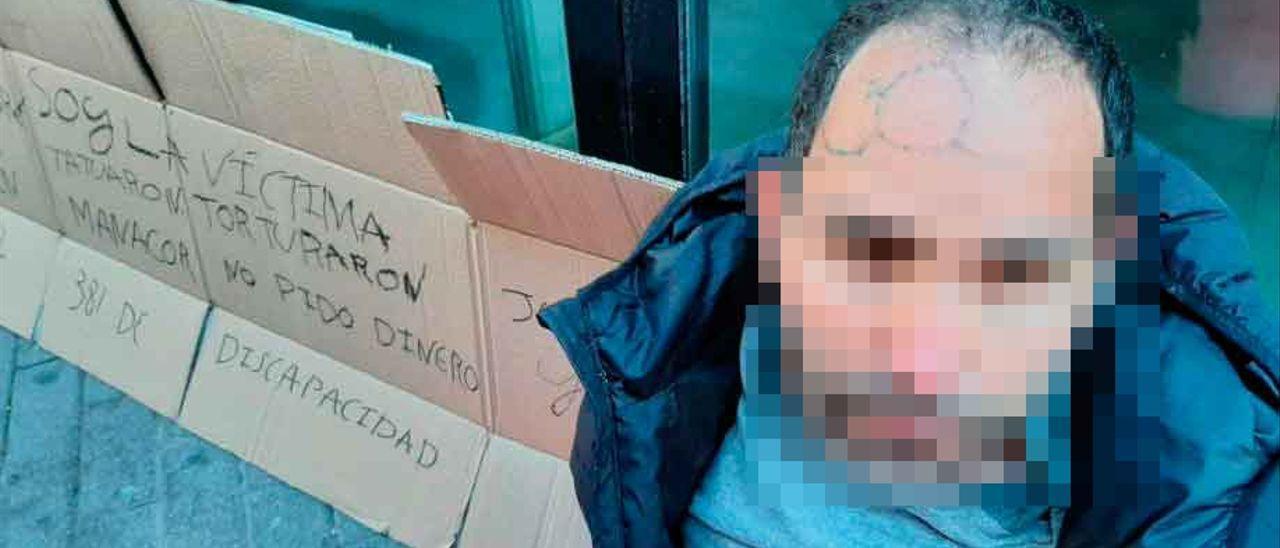 El joven torturado en Mallorca.