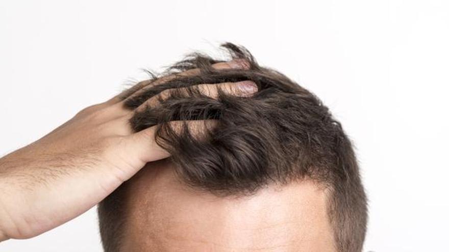 No rasurar es crucial a la hora de la incorporación socio-laboral del paciente.
