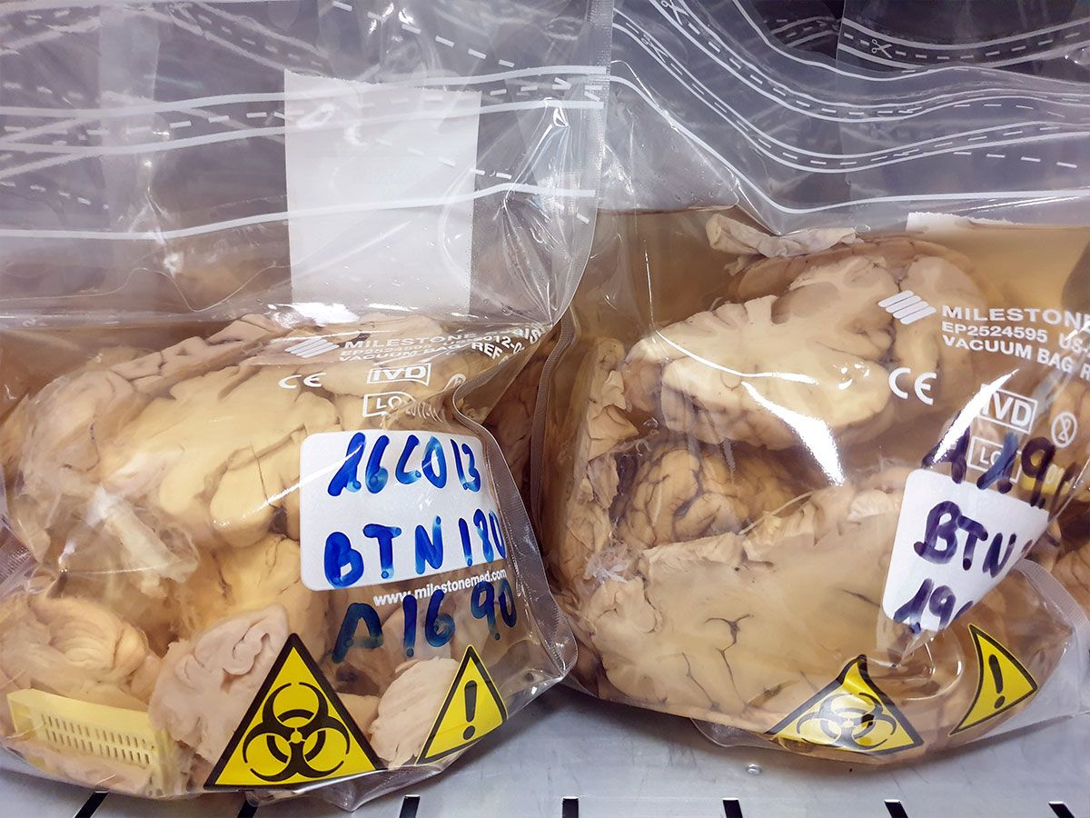 Cerebros humanos en bolsas