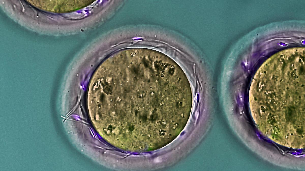 Investigadores descubren proteína imprescindible para la fertilidad masculina