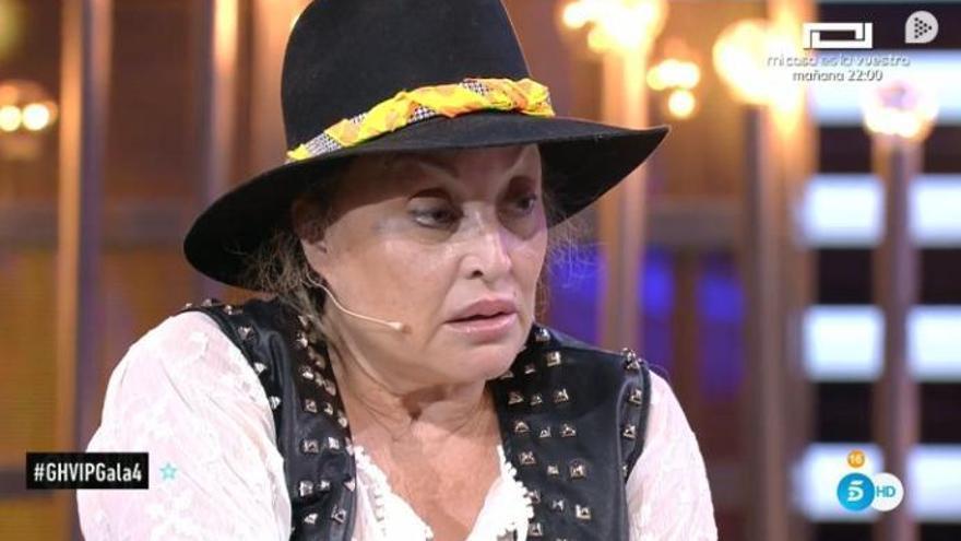 Aramís Fuster, segona expulsada de «GH VIP»