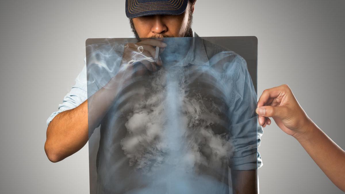 El tabaco provoca daños en los huesos.