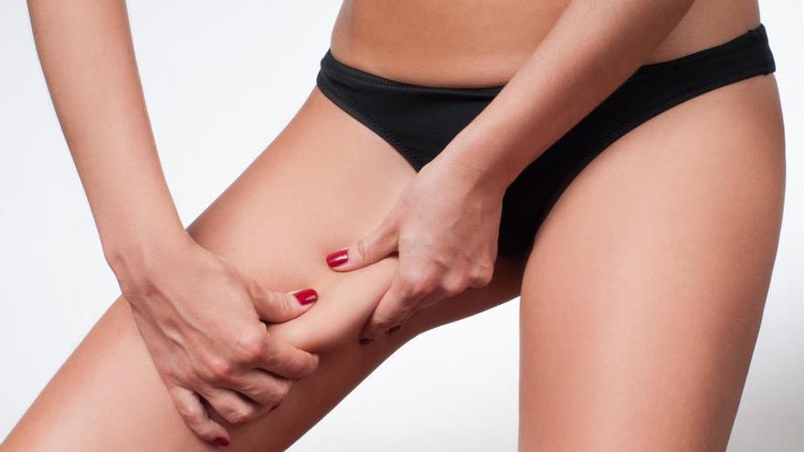 Cuatro trucos para evitar las rozaduras en los muslos