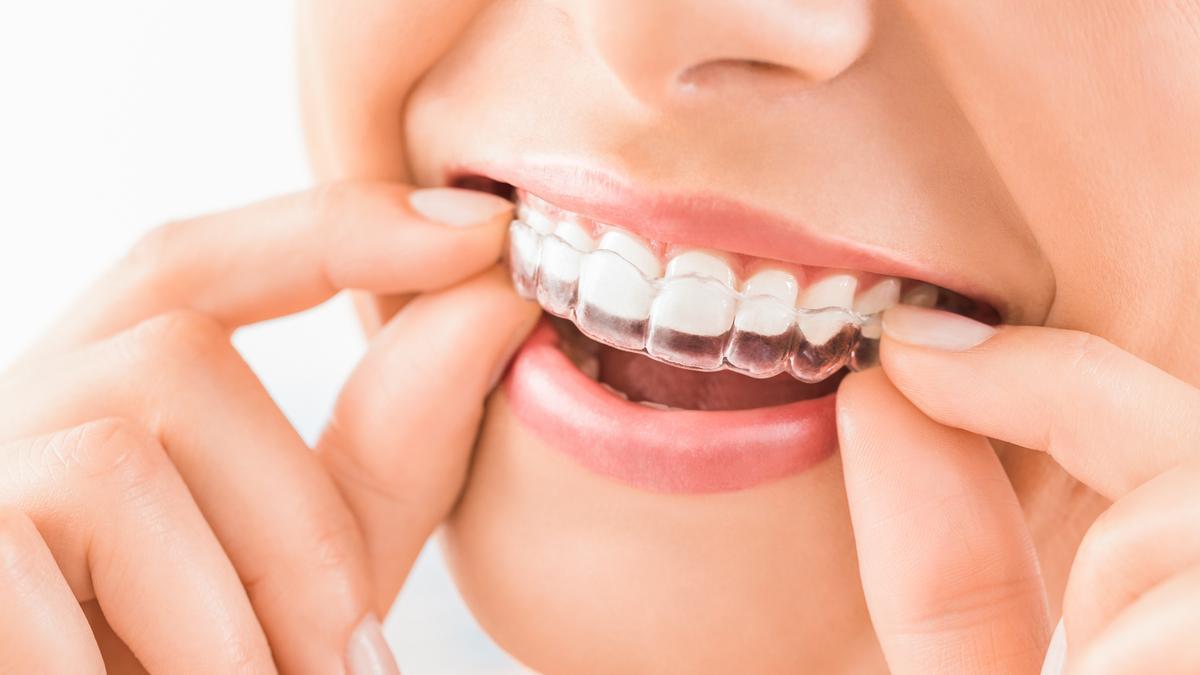 El sistema Invisalign representa una de las opciones del momento en tratamientos de ortodoncia por todos los beneficios que este aporta al paciente a la hora de corregir sus dientes.