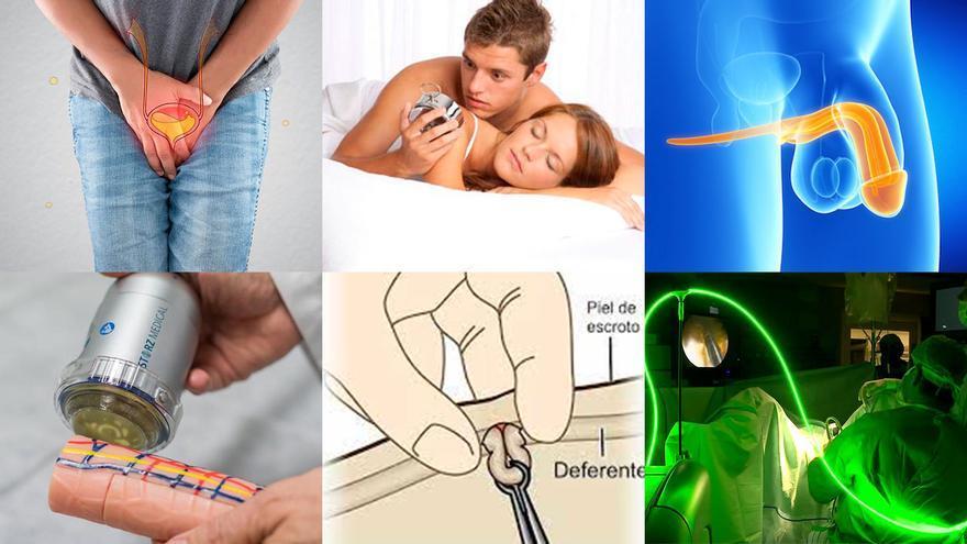 Muchos motivos para ir al urólogo