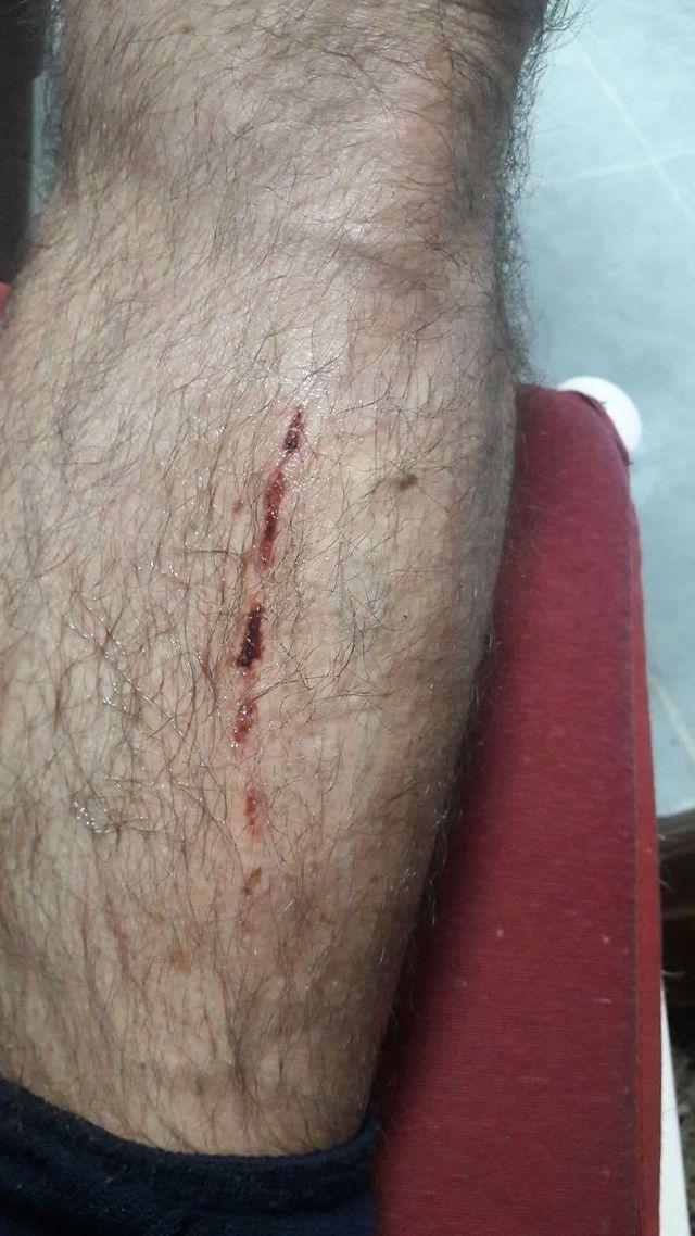 Al pequeño Rafa de 5 años le han tenido que poner 8 grapas por las heridas