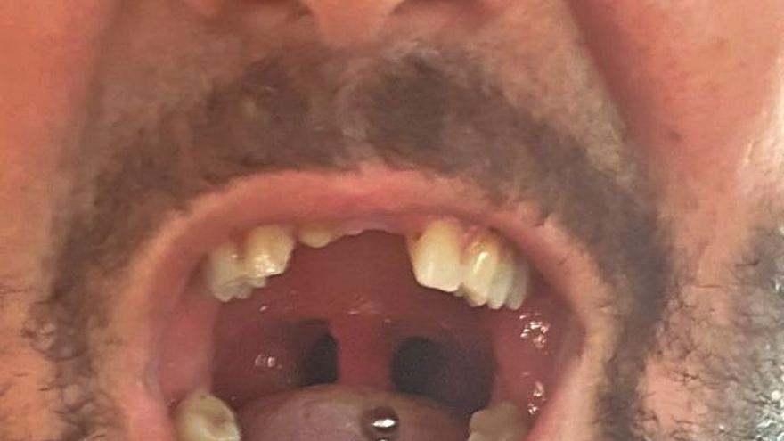 Tenir la vida en «standby»  per culpa d'un implant dental