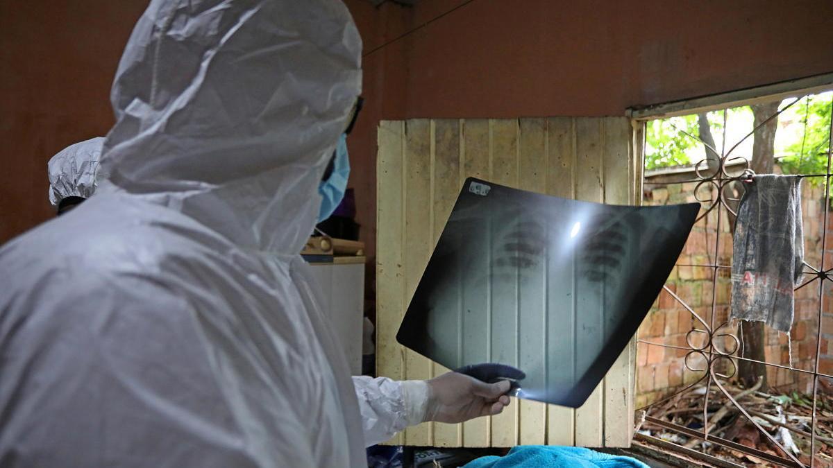 Un sanitario observa una ecografía de los pulmones de un paciente de coronavirus