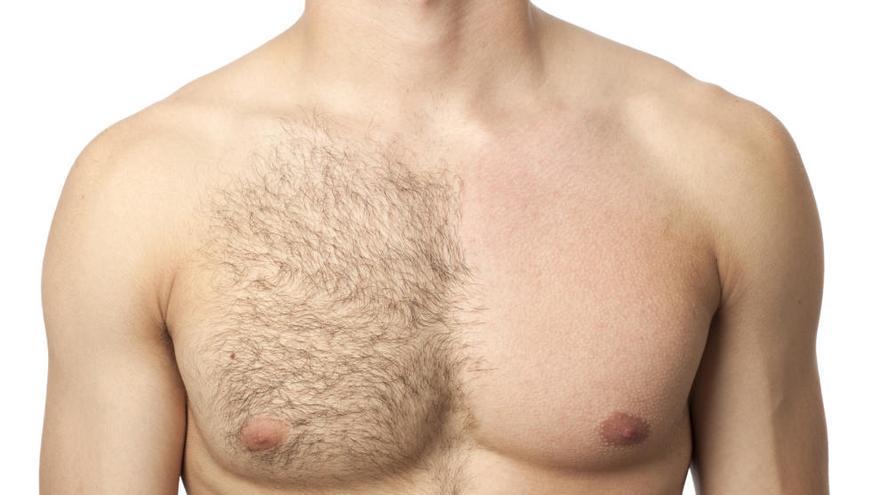 Depilación masculina: ventajas e inconvenientes