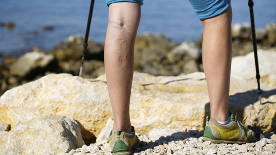 varicoză și tenis funcționarea venelor varicoase pe picior