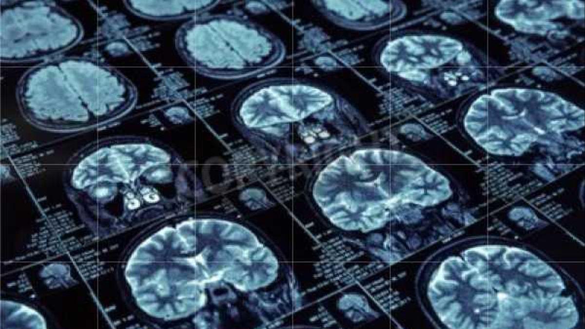 ¿Qué es el síndrome de Creutzfeld-Jacobs, la enfermedad que se ha cobrado la vida del doctor Baselga?
