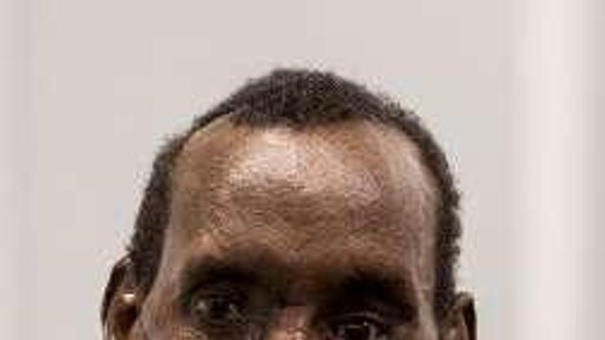 El doctor Cavadas reconstruye el rostro de un keniano atacado por una hiena