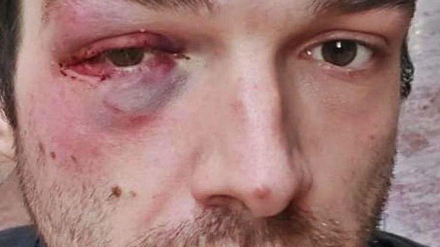"""Brutal paliza a un vecino de Oviedo de 26 años al grito de """"maricón de mierda"""""""