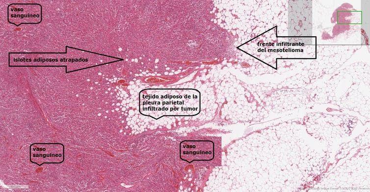 Imagen histológica a medianos aumentos de un mesotelioma con elevado grado de anaplasia procedente del microscopio virtual de la Universidad de Leeds.