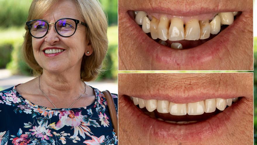 SALUD DENTAL | Boca perfecta y encía sana con implantes dentales inmediatos