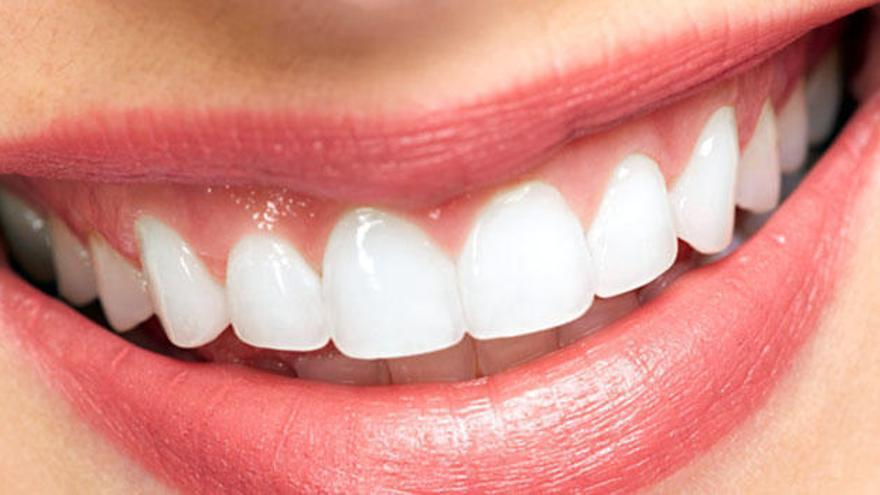 La Clínica Dental Benalúa desarrolla un innovador sistema para el diseño de sonrisas