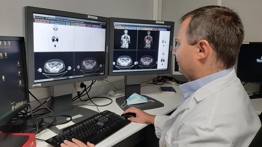 Diagnóstico precoz, la clave de Vithas contra el cáncer de próstata