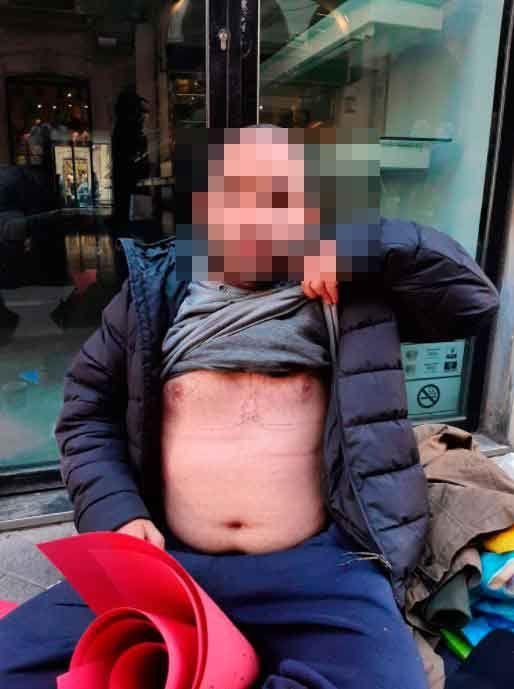 El joven torturado muestra los tatuajes que le hicieron en el pecho. J.F.M