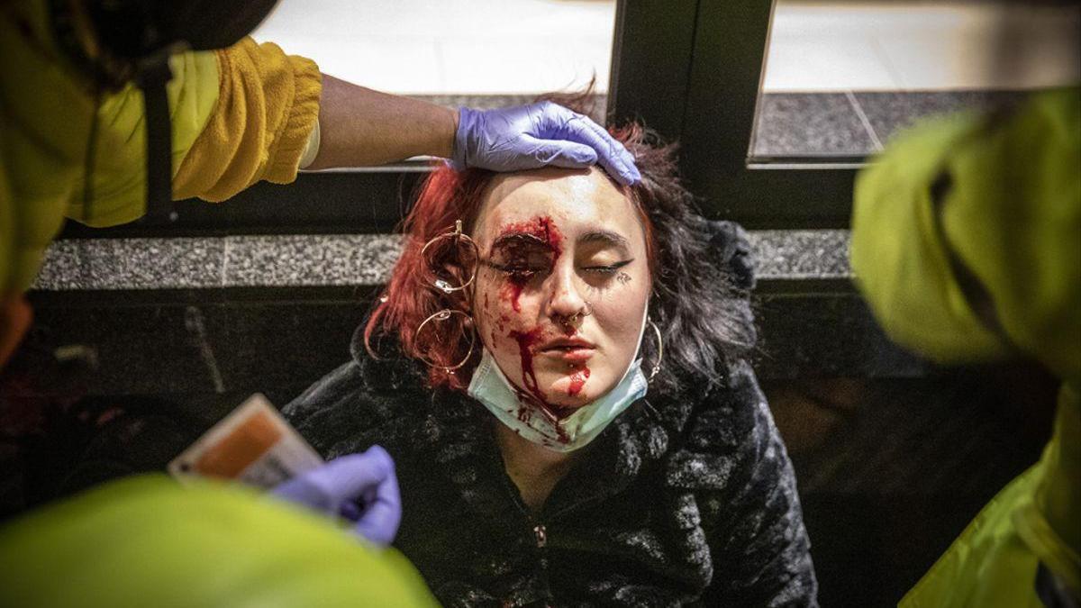 Los Mossos presentan el primer informe sobre la joven que perdió un ojo en las protestas por Hasél
