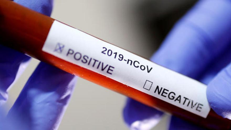 Los 27 profesionales sanitarios que tuvieron contacto con el primer médico de Baleares con coronavirus se encuentran en vigilancia activa