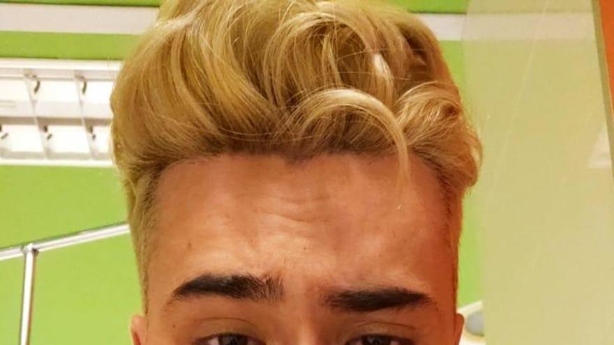 "Presunta agresión homófoba en Coreses: ""Me acaban de reventar la cara"""
