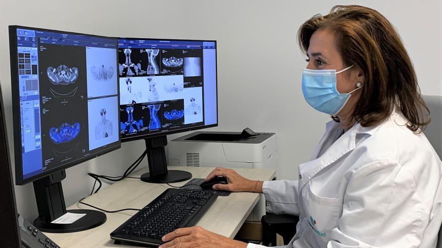 La medicina nuclear es esencial para el diagnóstico precoz del hiperparatiroidismo