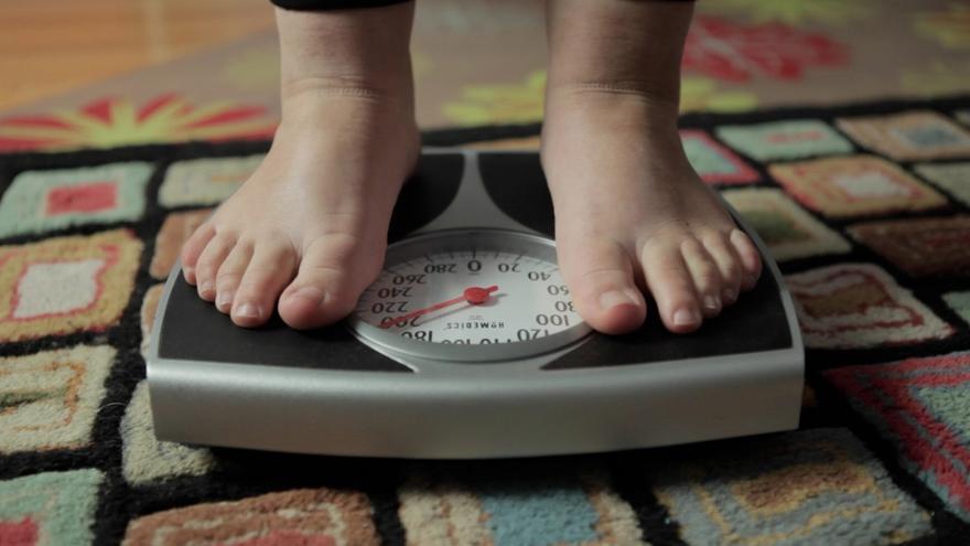 Di adiós a la obesidad con compromiso y la ayuda del método sin cirugía Apollo