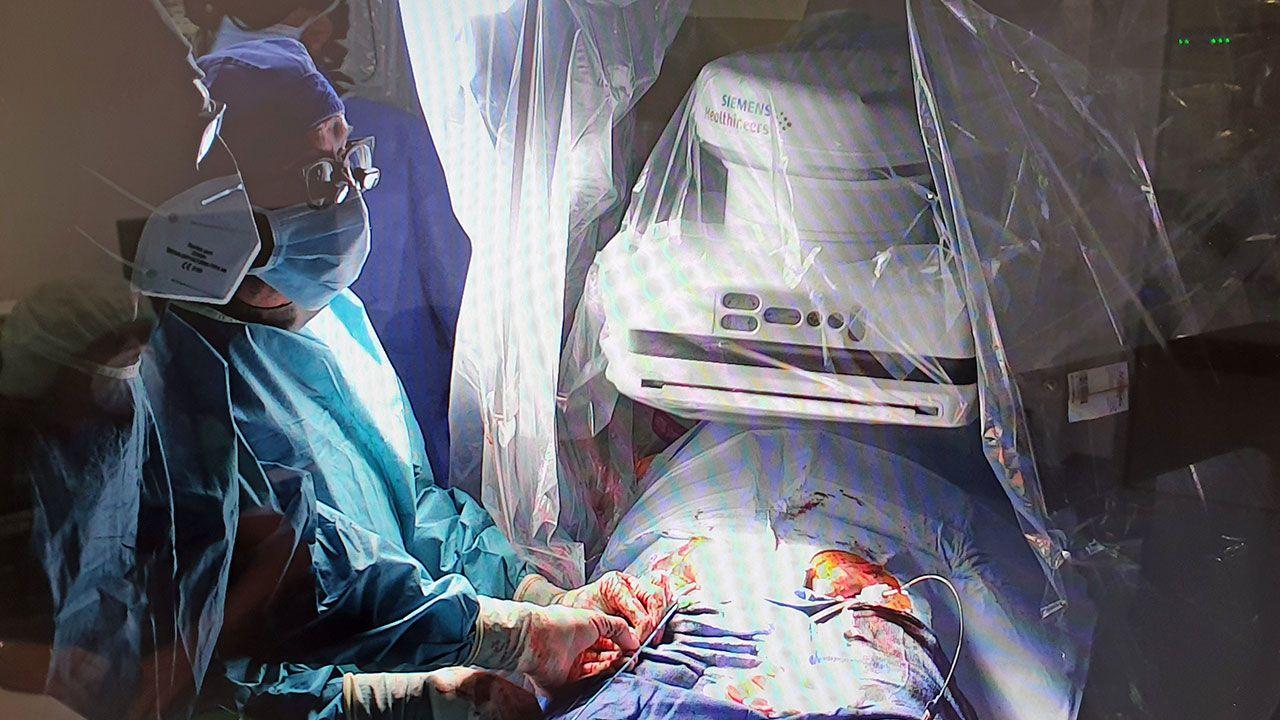 Los doctores durante un momento de la intervención