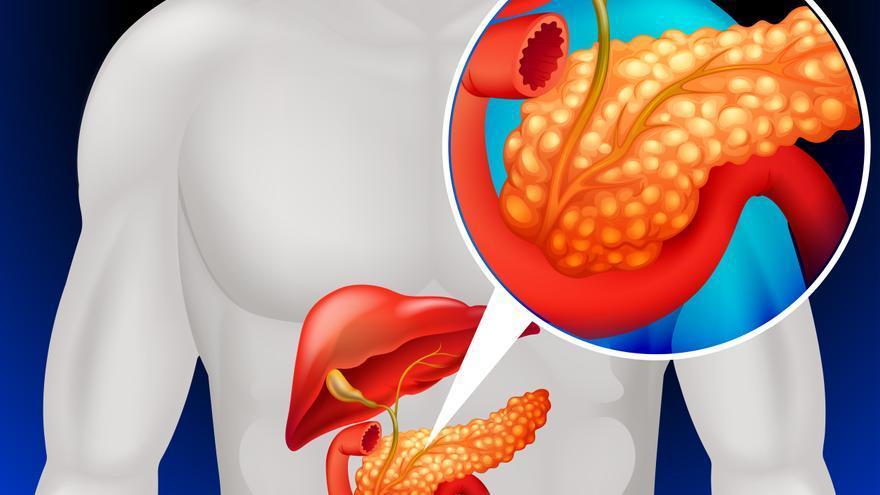 ¿Se puede curar el cáncer de páncreas?