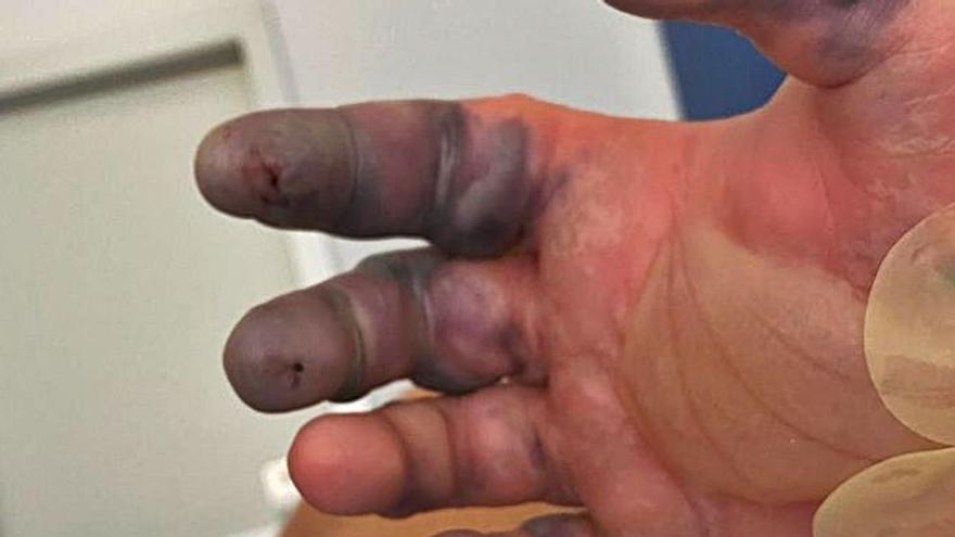 Un joven turista pierde dos dedos de una mano por la picadura de una araña en Ibiza