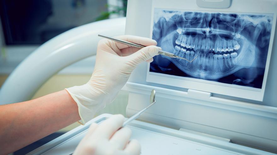 ¿Por qué es tan importante reponer una pieza dental? Todo lo que debes saber sobre los implantes
