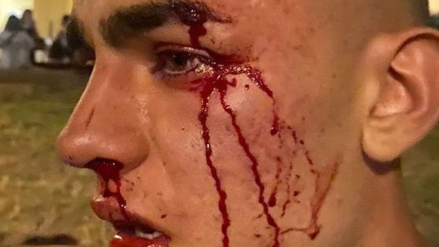 Un joven de 17 años sufre una agresión homofoba en València