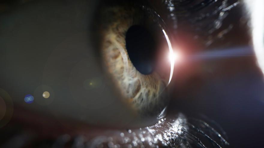 Las cataratas son la causa más común de ceguera en el mundo