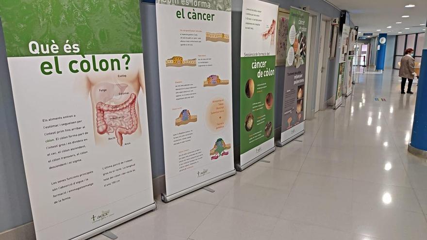 L'Hospital de Figueres acull una exposició sobre el càncer de còlon i recte