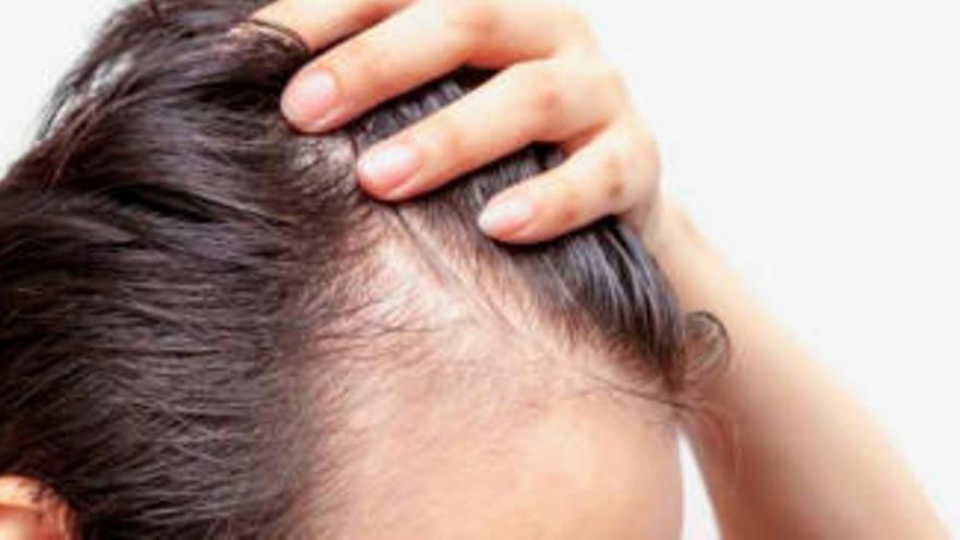 """""""La pérdida de cabello ya no es un problema"""""""