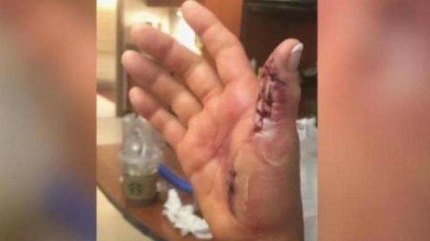 Casi pierde la mano tras infectarse con la bacteria 'comecarne'
