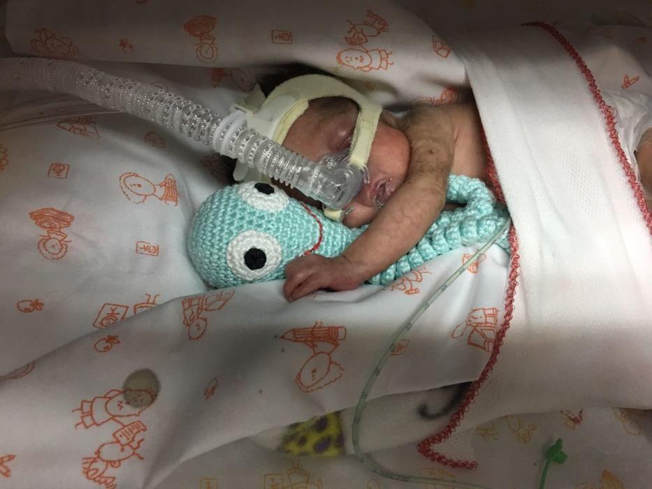 Araceli, durante sus primeros días de vida en la incubadora.