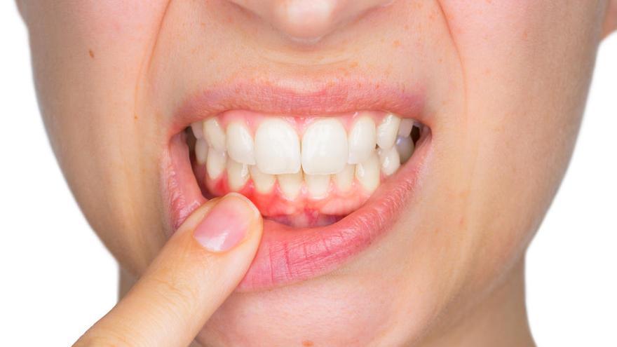 La enfermedad de las encías puede aumentar el riesgo de cáncer de esófago y gástrico