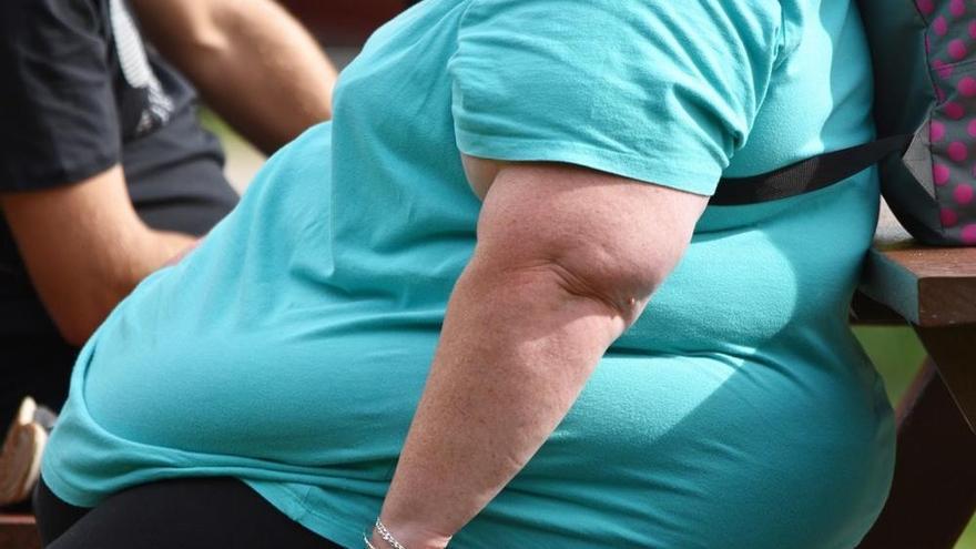 La obesidad, una de las tres principales causas de muerte en el mundo